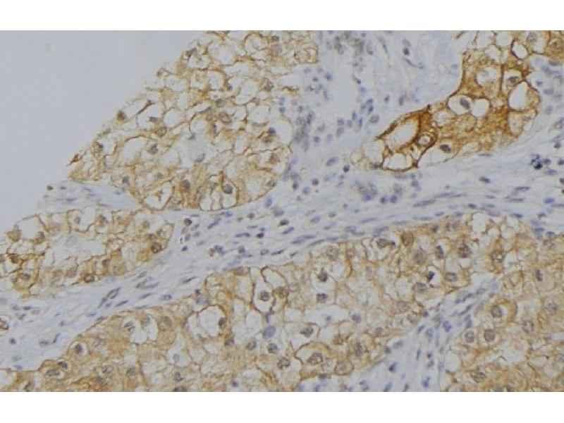 Immunohistochemistry (IHC) image for anti-Complement Factor P (CFP) antibody (ABIN6260781)
