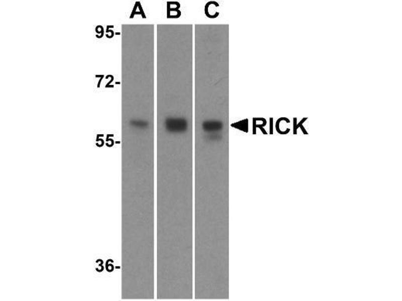 Western Blotting (WB) image for anti-Receptor-Interacting Serine-threonine Kinase 2 (RIPK2) antibody (ABIN4350592)