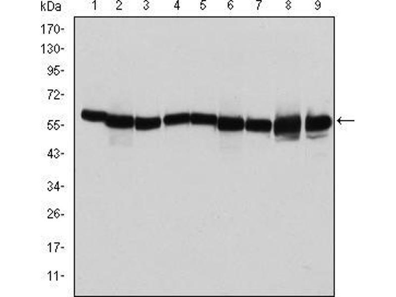 Western Blotting (WB) image for anti-Heat Shock 60kDa Protein 1 (Chaperonin) (HSPD1) antibody (ABIN969200)