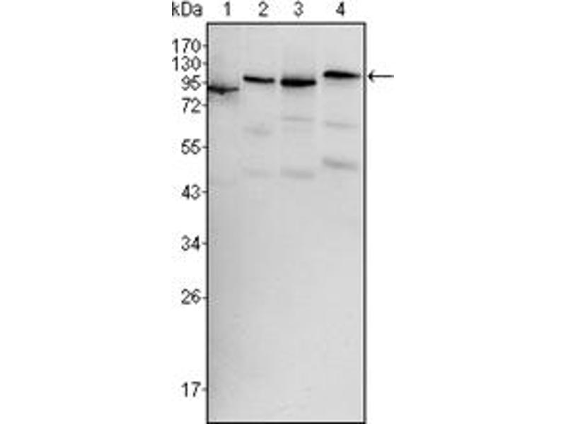 Western Blotting (WB) image for anti-V-Raf Murine Sarcoma Viral Oncogene Homolog B1 (BRAF) antibody (ABIN1105489)