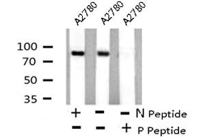 Western Blotting (WB) image for anti-Signal Transducer and Activator of Transcription 4 (STAT4) (pSer721) antibody (ABIN6271422)