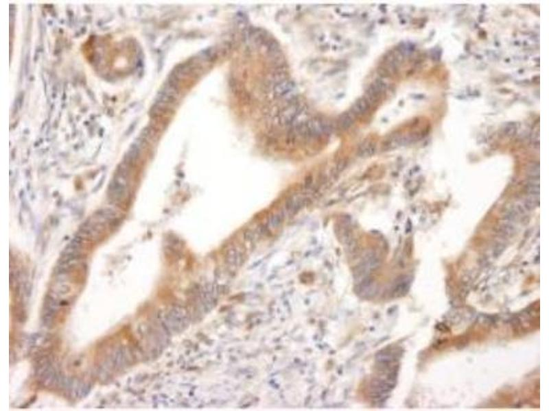 Immunohistochemistry (Paraffin-embedded Sections) (IHC (p)) image for anti-PML antibody (Promyelocytic Leukemia) (AA 375-425) (ABIN252967)
