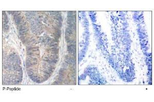 image for anti-EIF2AK2 antibody (Eukaryotic Translation Initiation Factor 2-alpha Kinase 2) (pThr451) (ABIN197058)