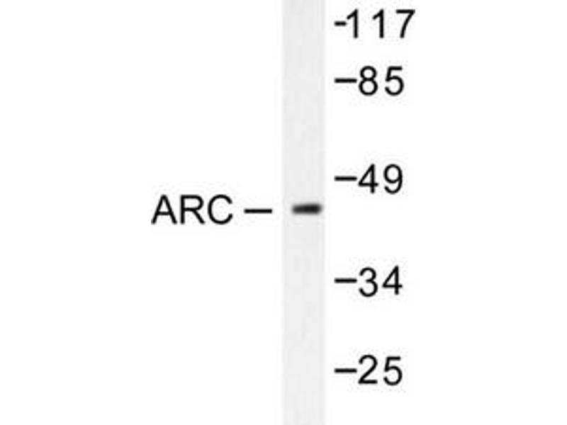 image for anti-Cadherin 1, Type 1, E-Cadherin (Epithelial) (CDH1) (Arg3) antibody (ABIN265314)