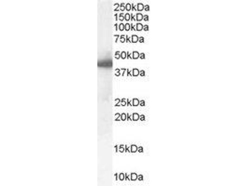 image for anti-SERPINE1 antibody (serpin Peptidase Inhibitor, Clade E (Nexin, Plasminogen Activator Inhibitor Type 1), Member 1) (Internal Region) (ABIN374547)