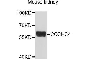 Image no. 2 for anti-Zinc Finger, CCHC Domain Containing 4 (ZCCHC4) antibody (ABIN4905664)