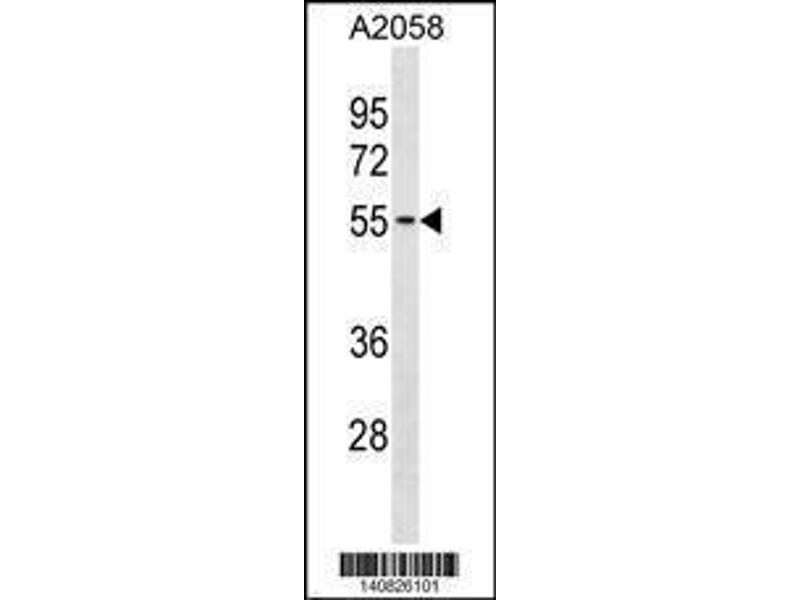 Western Blotting (WB) image for anti-Thioredoxin-Related Transmembrane Protein 3 (TMX3) (AA 402-431), (C-Term) antibody (ABIN1881893)