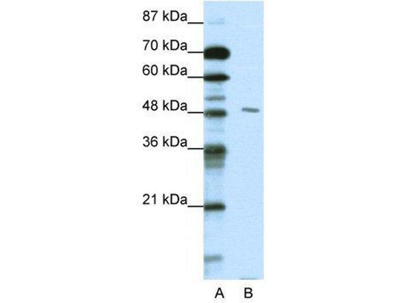 Western Blotting (WB) image for anti-Pre-B-Cell Leukemia Homeobox Protein 2 (PBX2) (N-Term) antibody (ABIN183621)