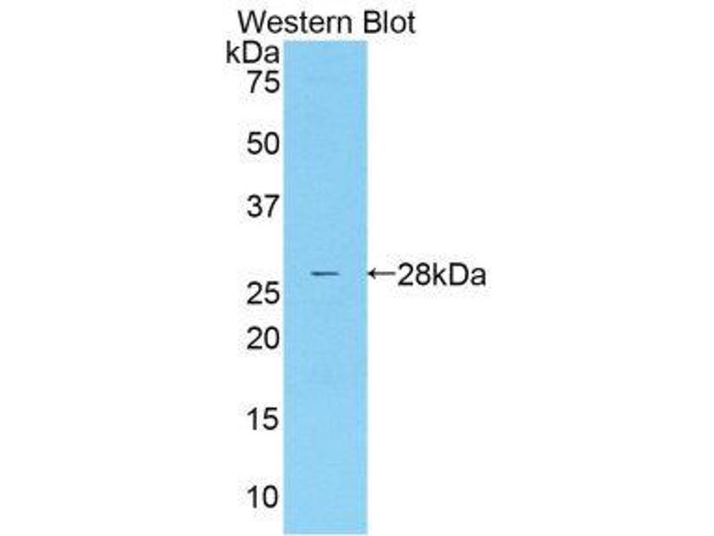 Western Blotting (WB) image for anti-Mannan-Binding Lectin serine Peptidase 2 (MASP2) (AA 445-683) antibody (ABIN1859763)