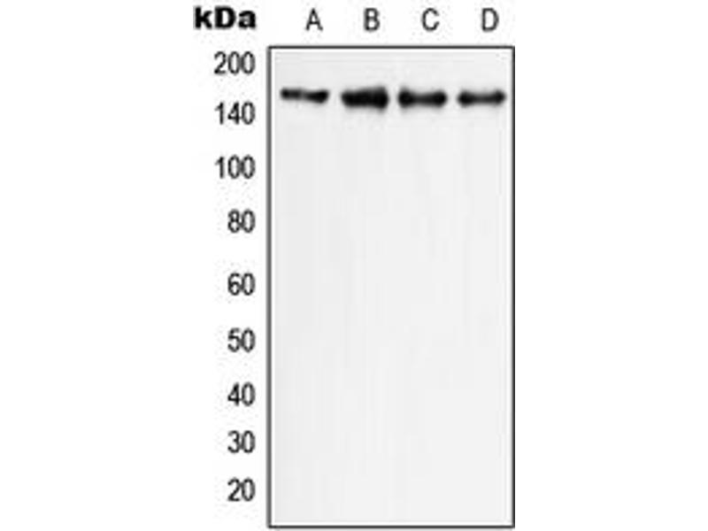 Western Blotting (WB) image for anti-Phospholipase C gamma 1 antibody (phospholipase C, gamma 1) (C-Term) (ABIN2705141)