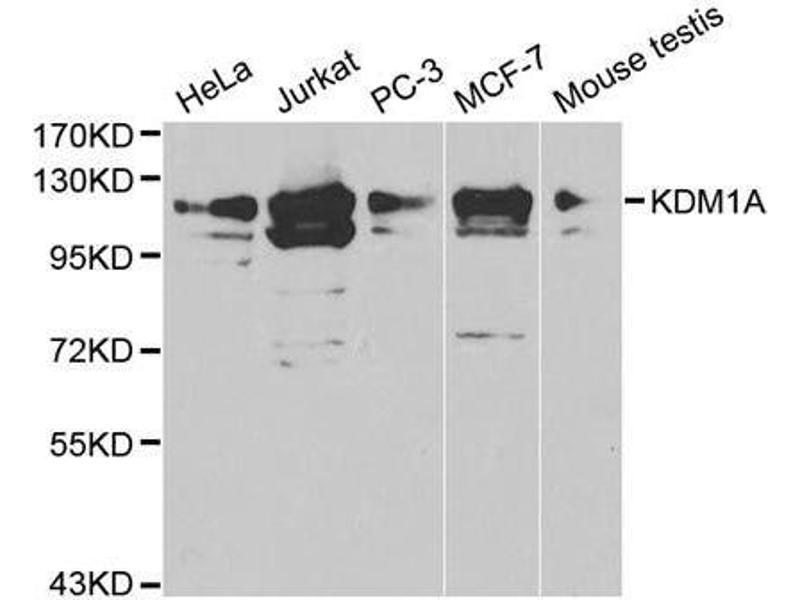 Western Blotting (WB) image for anti-Lysine (K)-Specific Demethylase 1A (KDM1A) antibody (ABIN3021575)