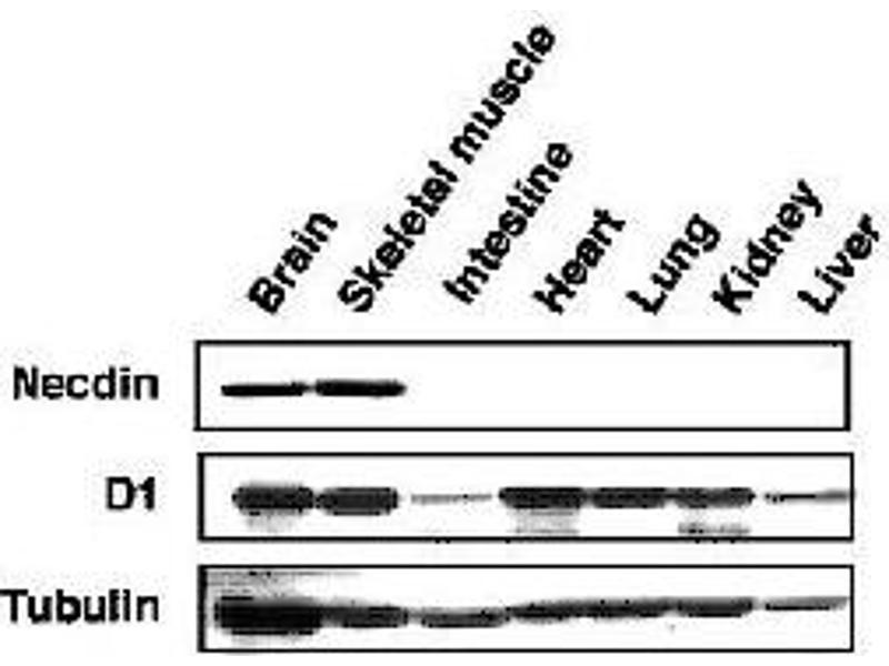 Image no. 2 for anti-Melanoma Antigen Family D, 1 (MAGED1) (AA 1-775) antibody (ABIN2452045)