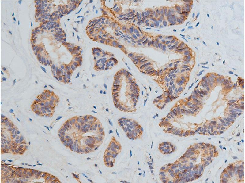 Immunohistochemistry (IHC) image for anti-Kinase insert Domain Receptor (A Type III Receptor tyrosine Kinase) (KDR) antibody (ABIN6265973)
