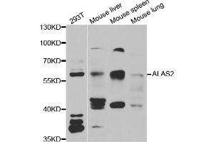 Image no. 1 for anti-Aminolevulinate, delta-, Synthase 2 (ALAS2) antibody (ABIN6570494)