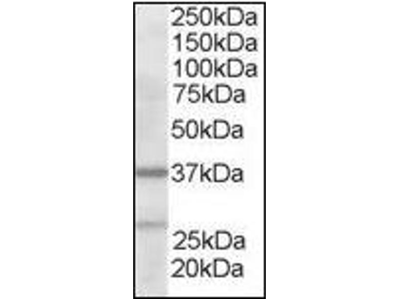 image for anti-Actin Related Protein 2/3 Complex, Subunit 1B, 41kDa (ARPC1B) (N-Term) antibody (ABIN372937)