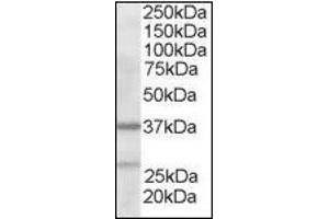image for anti-ARPC1B antibody (Actin Related Protein 2/3 Complex, Subunit 1B, 41kDa) (N-Term) (ABIN372937)