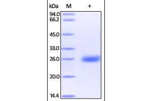 Image no. 1 for Ubiquitin Carboxyl-terminal Esterase L1 (Ubiquitin Thiolesterase) (UCHL1) (AA 2-223) protein (His tag) (ABIN2181887)
