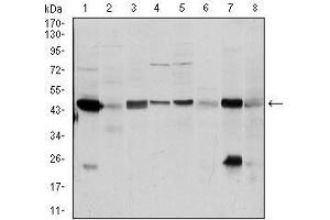 Western Blotting (WB) image for anti-Argininosuccinate Synthase 1 (ASS1) antibody (ABIN969503)