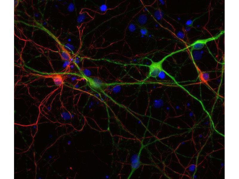 Immunocytochemistry (ICC) image for anti-Neurofilament Triplet M Protein (NEFM) antibody (ABIN4889921)