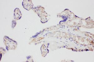 Immunohistochemistry (IHC) image for anti-VEGF antibody (Vascular Endothelial Growth Factor A) (AA 27-191) (ABIN3042324)