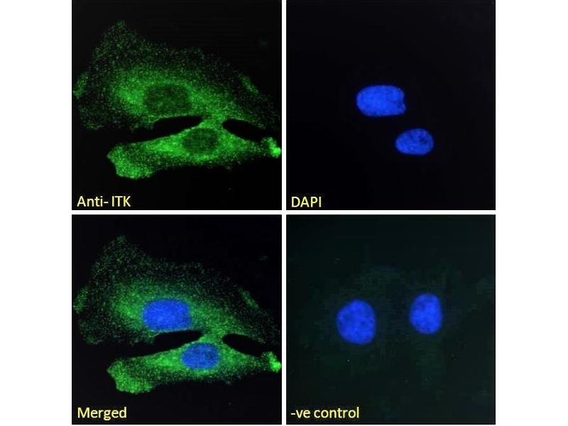 Image no. 5 for anti-IL2-Inducible T-Cell Kinase (ITK) (C-Term) antibody (ABIN184605)