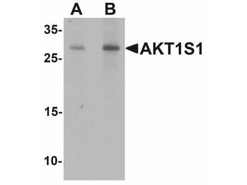 Western Blotting (WB) image for anti-AKT1 Substrate 1 (Proline-Rich) (AKT1S1) (C-Term) antibody (ABIN4347194)