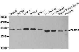 Image no. 3 for anti-Dehydrogenase/reductase (SDR Family) Member 2 (DHRS2) antibody (ABIN6570452)