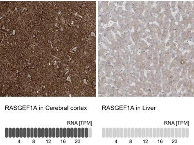 Immunohistochemistry (Paraffin-embedded Sections) (IHC (p)) image for anti-RasGEF Domain Family, Member 1A (RASGEF1A) antibody (ABIN4349411)