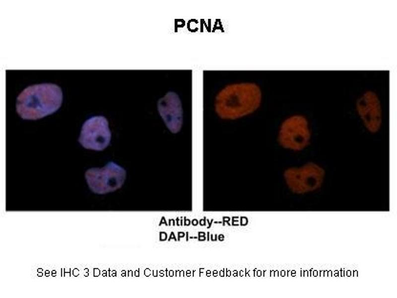 Immunohistochemistry (IHC) image for anti-PCNA antibody (Proliferating Cell Nuclear Antigen) (C-Term) (ABIN184165)