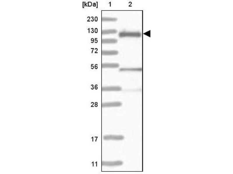 Western Blotting (WB) image for anti-Cas-Br-M (Murine) Ecotropic Retroviral Transforming Sequence (CBL) antibody (ABIN4288402)