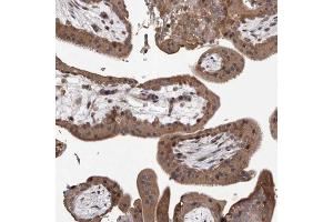 Immunohistochemistry (Paraffin-embedded Sections) (IHC (p)) image for anti-Growth Arrest and DNA-Damage-Inducible, beta (GADD45B) antibody (ABIN4336943)