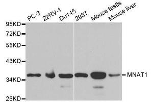 Image no. 3 for anti-Menage A Trois Homolog 1, Cyclin H Assembly Factor (Xenopus Laevis) (MNAT1) antibody (ABIN3022658)