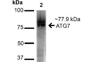 Image no. 3 for anti-ATG7 Autophagy Related 7 (ATG7) (N-Term) antibody (Alkaline Phosphatase (AP)) (ABIN5065894)