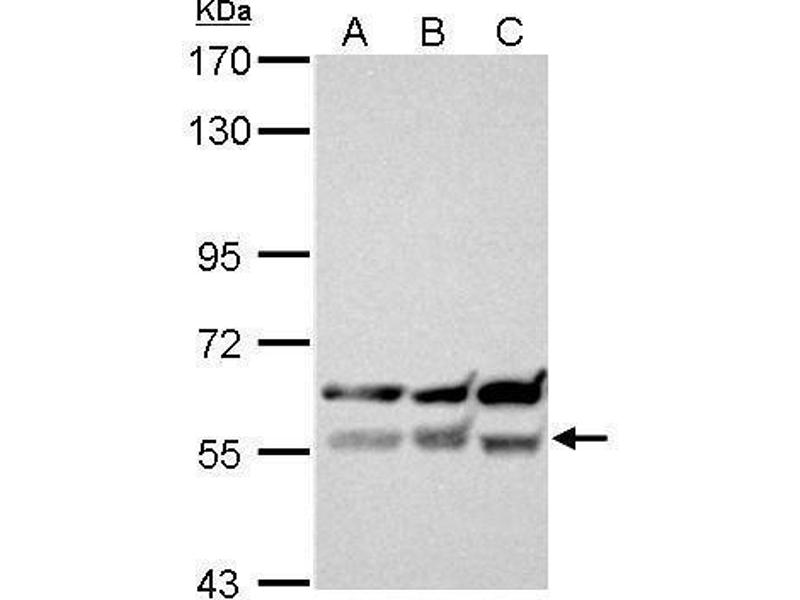 Western Blotting (WB) image for anti-XIAP antibody (X-Linked Inhibitor of Apoptosis) (C-Term) (ABIN2854771)