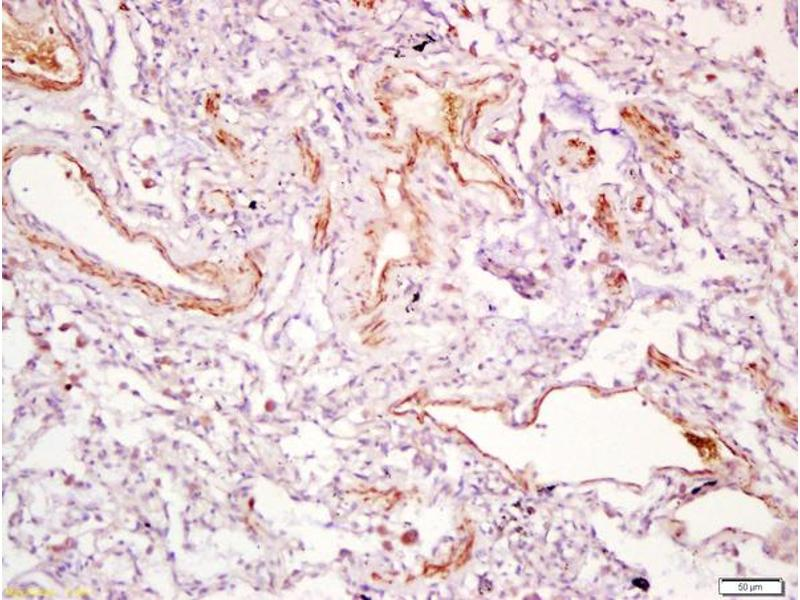 Immunohistochemistry (IHC) image for anti-PDGFD antibody (Platelet Derived Growth Factor D) (AA 300-350) (ABIN714581)
