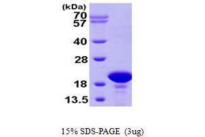 Image no. 1 for Prefoldin Subunit 2 (PFDN2) (AA 1-154) protein (His tag) (ABIN667258)