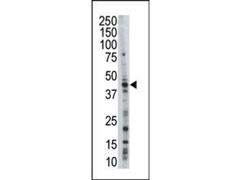 Western Blotting (WB) image for anti-MAPK10 antibody (Mitogen-Activated Protein Kinase 10) (N-Term) (ABIN359417)