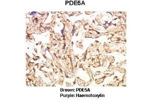 Image no. 2 for anti-phosphodiesterase 5A, cGMP-Specific (PDE5A) (C-Term) antibody (ABIN2789423)