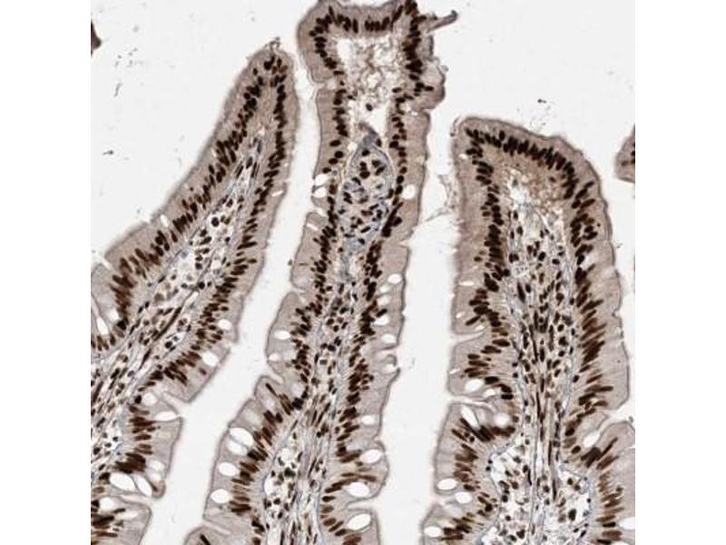Immunofluorescence (Paraffin-embedded Sections) (IF (p)) image for anti-RNA Binding Motif Protein 10 (RBM10) antibody (ABIN4349575)