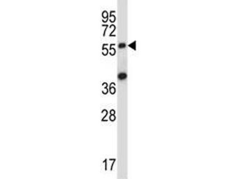 Western Blotting (WB) image for anti-SOCS6 antibody (Suppressor of Cytokine Signaling 6) (AA 40-69) (ABIN3029048)