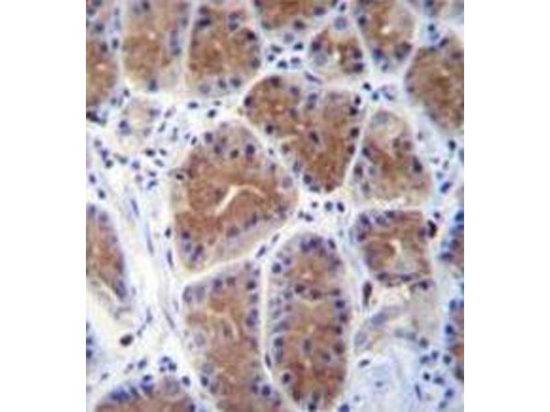 Immunohistochemistry (Paraffin-embedded Sections) (IHC (p)) image for anti-m1ip1 antibody (Mid1-Interacting Protein 1) (N-Term) (ABIN953443)