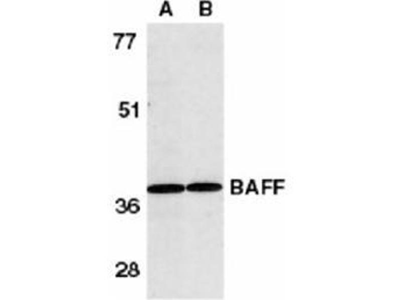 image for anti-Tumor Necrosis Factor (Ligand) Superfamily, Member 13b (TNFSF13B) (AA 254-269) antibody (ABIN319035)