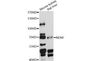 Image no. 1 for anti-Neuron-Derived Neurotrophic Factor (NDNF) antibody (ABIN6294153)