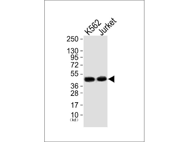 Western Blotting (WB) image for anti-MAP Kinase Interacting serine/threonine Kinase 1 (MKNK1) antibody (ABIN2801944)