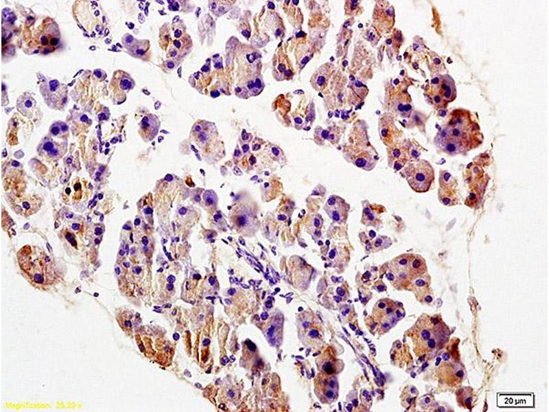 Immunohistochemistry (IHC) image for anti-TRADD antibody (TNFRSF1A-Associated Via Death Domain) (AA 120-170) (ABIN673314)