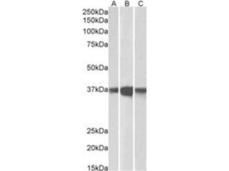 Western Blotting (WB) image for anti-Protein Phosphatase 2, Catalytic Subunit, alpha Isozyme (PPP2CA) (C-Term) antibody (ABIN257667)