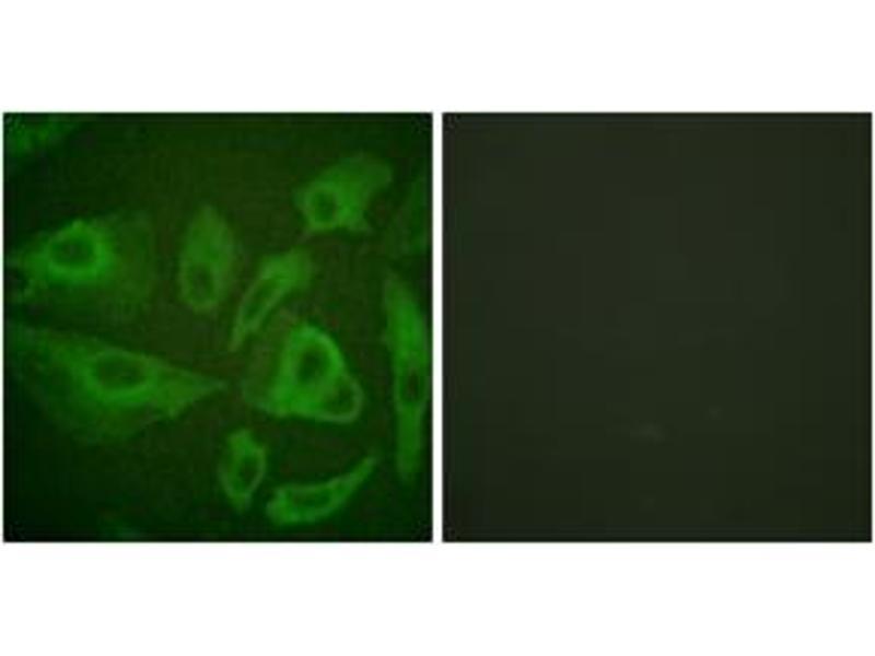 Immunofluorescence (IF) image for anti-Fas (TNF Receptor Superfamily, Member 6) (FAS) (AA 257-306) antibody (ABIN1532613)