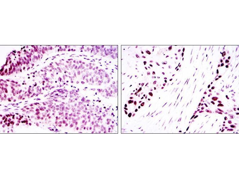 Immunohistochemistry (IHC) image for anti-p63alpha antibody (ABIN969337)