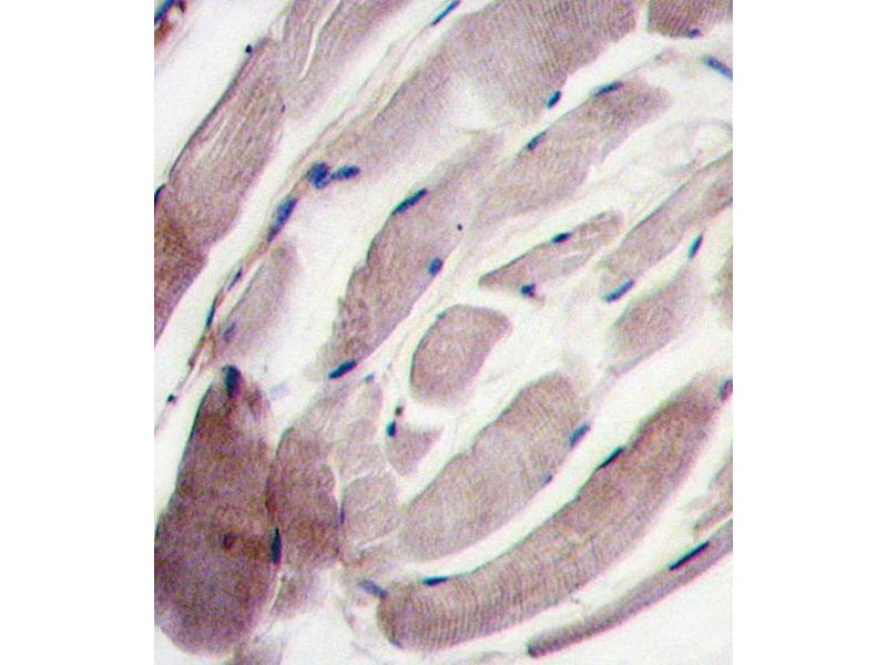 Immunohistochemistry (IHC) image for anti-MAPK12 antibody (Mitogen-Activated Protein Kinase 12) (C-Term) (ABIN2447974)