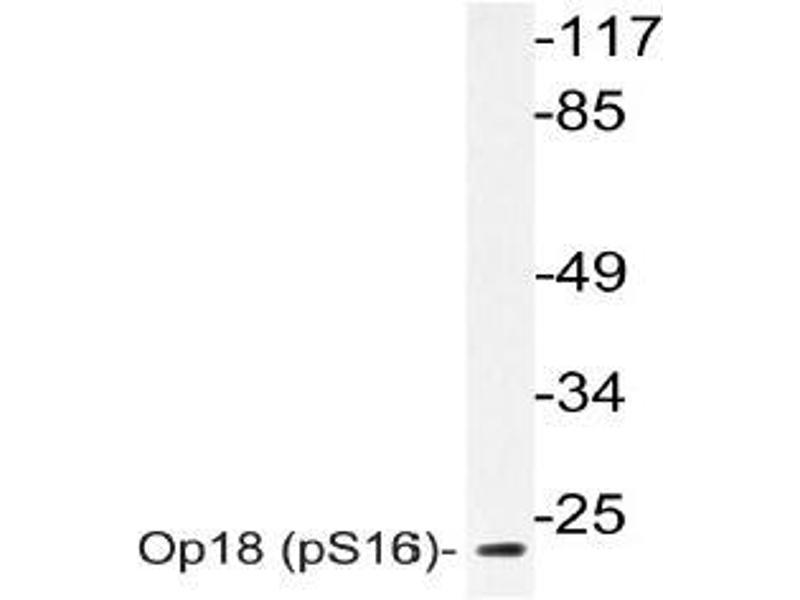 Western Blotting (WB) image for anti-Stathmin 1 antibody (STMN1) (pSer16) (ABIN498735)